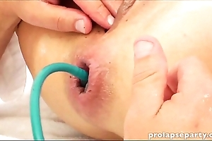 Anal prolapsing forwards gynecologist